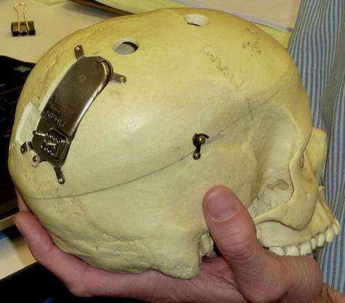 NeuroPace found a way to implant the RNS in the skull.